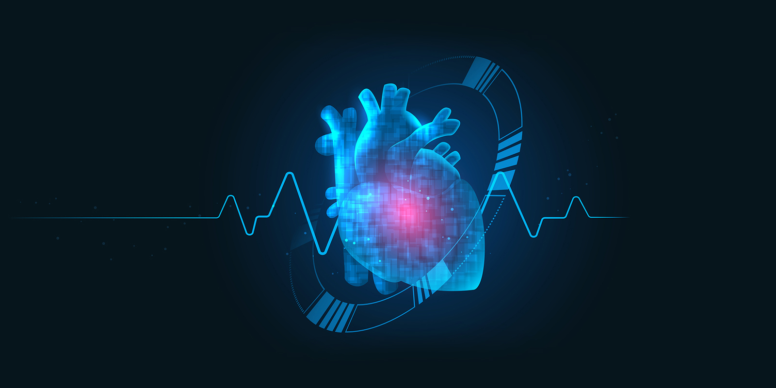 HeartBeatCVI – Our AI enabled CardioVascular Imaging Product